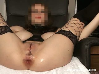 Anal fisting with her vagina sewn closed