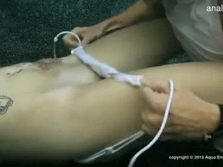 Cycate gf accidental anal