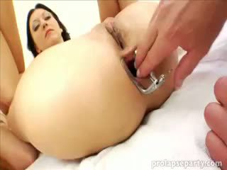Anal prolapsing la the gynecologist